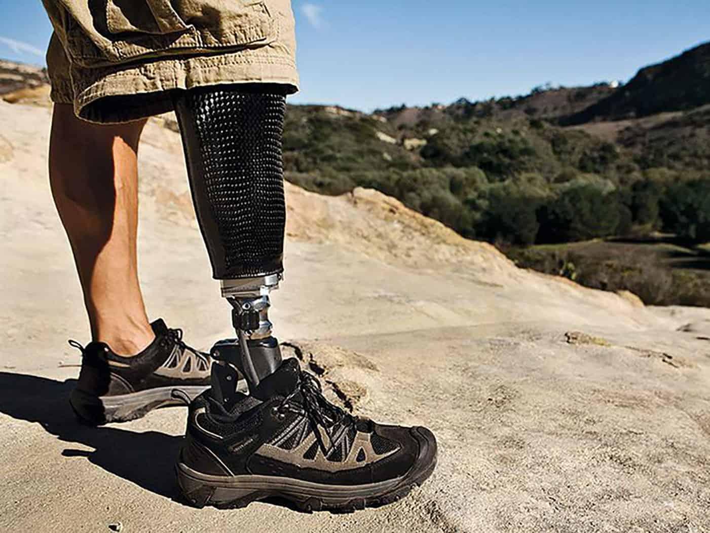 presidio neri team - protesi gamba piede