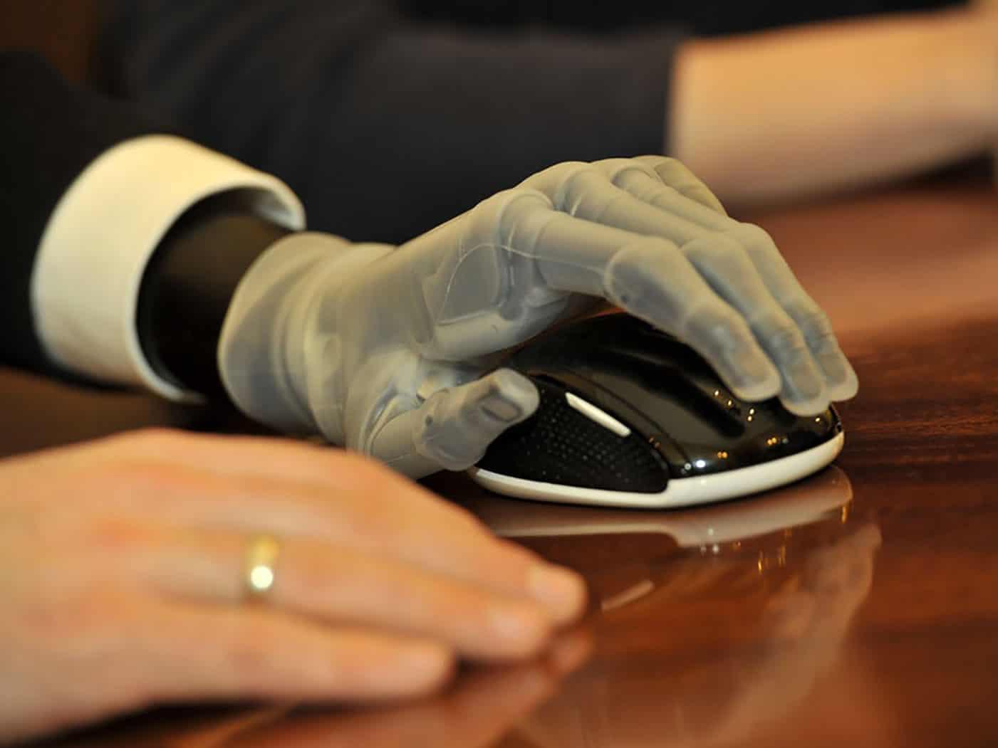 presidio neri team - protesi mano e mouse